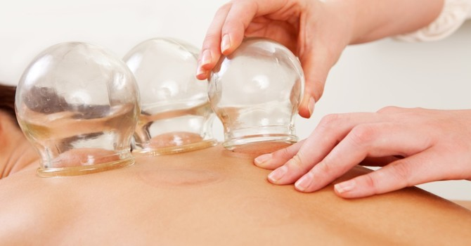 Cupping Decompression Therapy